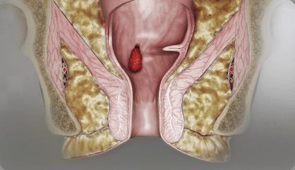 Hemoroid Band Ligasyonu