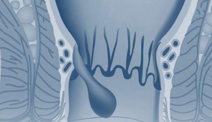 Hemoroid Tedavisinde İnfrared Lazer Uygulaması